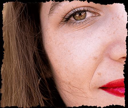 taches pigmentaires visage
