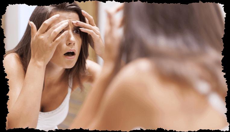Visage femme boutons acné