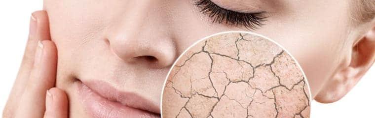 visage femme peau déshydratée