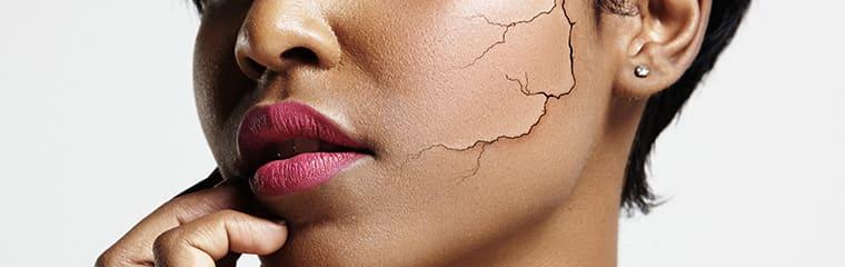 visage rides marquées peau sèche
