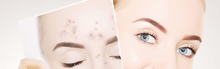 concept avant après acné visage femme
