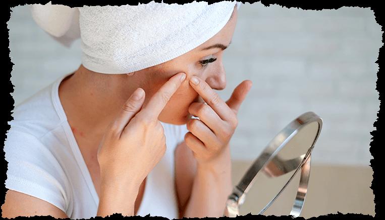 femme acné hormonale