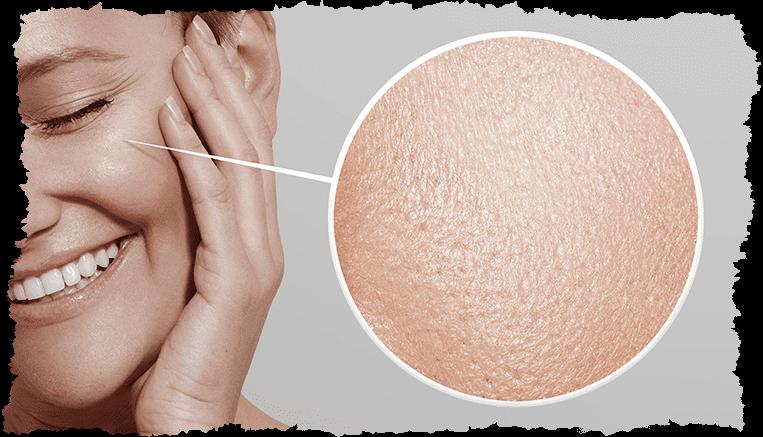 visage femme loupe peau fibroblaste