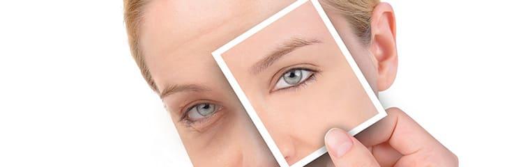 femme yeux gonflés concept photo