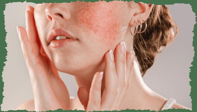 Couperose, rosacée : d'où viennent ces rougeurs au visage ?