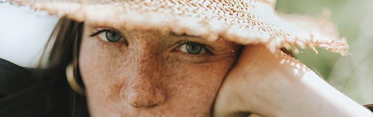 visage femme brune taches rousseur
